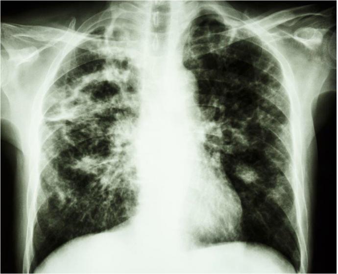Longfoto Tuberculose